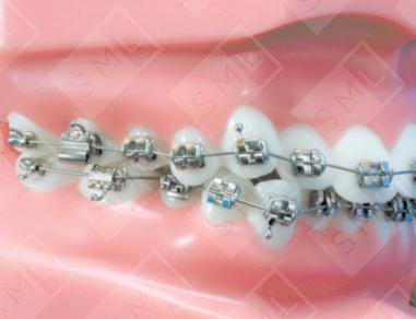 Straight Wire Technique Teeth Movement Orthodontic