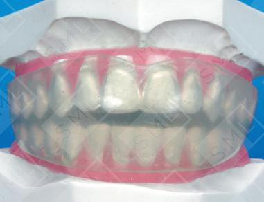 Dental Positioner Silicone Positioners Rubber Positioner
