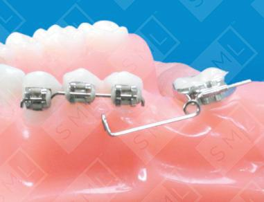 Molar Uprighting Fixed Appliance U L Individual Tooth