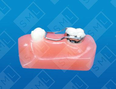 Space Maintainer Dental Space Holder Orthodontic