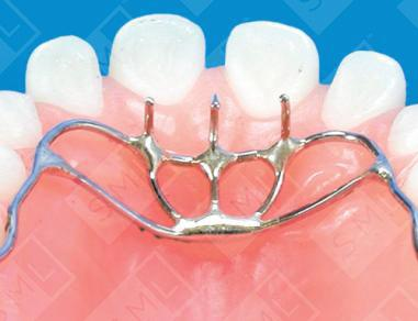 Upper Hay Rake U Thumb Sucking Prevention Dental Appliance Sml