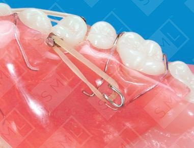 Combination Fixed/ Removable Appliance U/L, Teeth Rotating