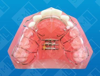 Bilateral Crossbite U Pediatric Dental Appliances Low
