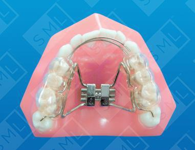 Bonded R P E W Lap Spring And Rests Vertical Tooth