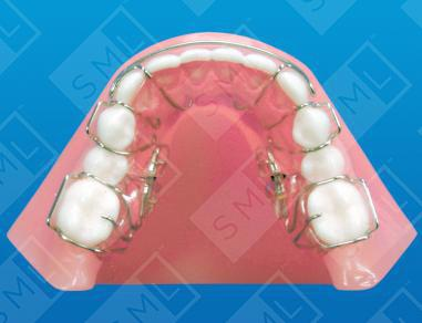 Lower Molar Distalizing Sagittal Arch Expansion Dentist