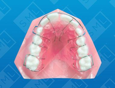 Removable With Anterior Finger Springs U L Teeth Moving